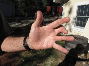 """Back in Tahoe, an """"island pedicle flap"""", was done stealing a blood vessel and a nerve from my ring finger to repair the injury on the middle finger."""